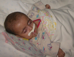 Friends of Russian Orphans FORO Orphan Baby with Medical Needs